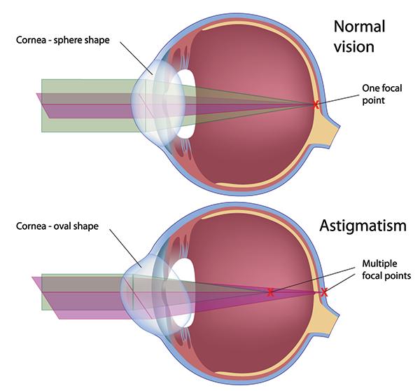 Astigmatism in Tucson | Tucson Corrective Lenses | Astigmatism 85712