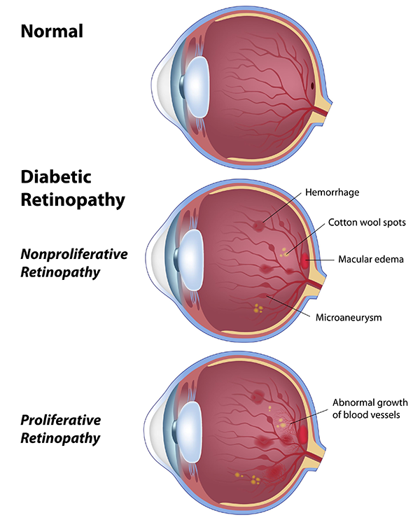 0436d0e318d Diabetic Eye Care in Tucson