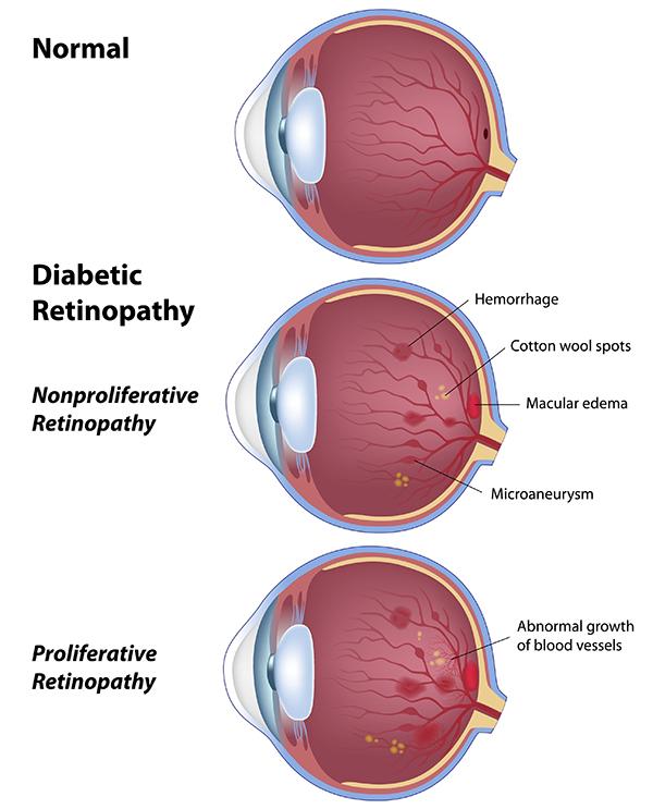 Diabetic eye care in tucson diabetic eye tucson diabetic eye 85712 diabetic eye care ccuart Gallery