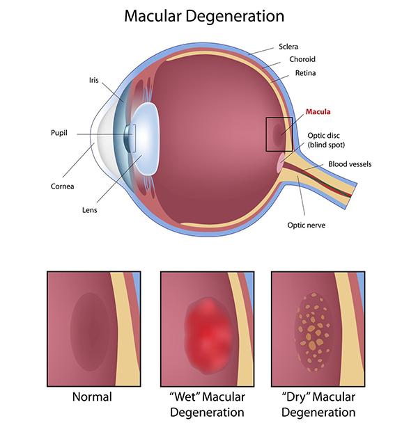 Macular Degeneration Tucson Tucson Age Related Macular
