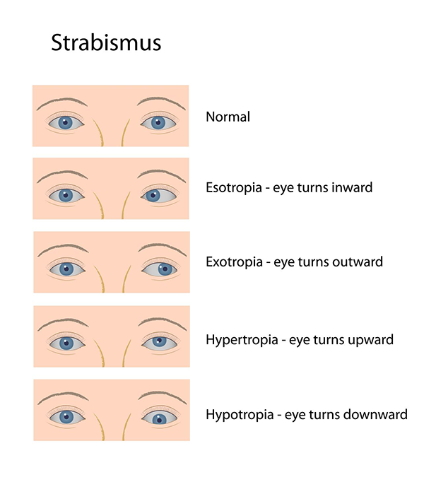 Tucson Strabismus Treatment
